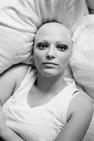 bald_is_beautiful_enzo_dal_verme