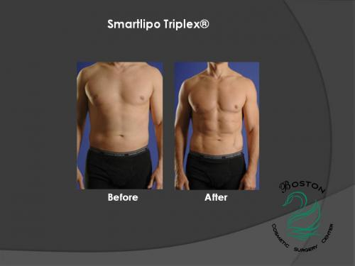 Boston Cosmetic Surgery Center Now Offering Smartlipo
